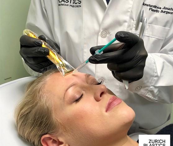 Faltenbehandlung in Zürich, Teil 1 – Botox® bzw. Botulinumtoxin A