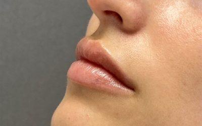 Lippen aufspritzen in Zürich