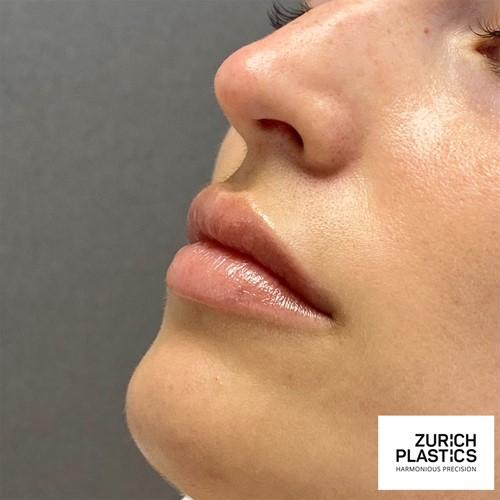 Lippenvergrösserung | Lippen aufspritzen in Zürich