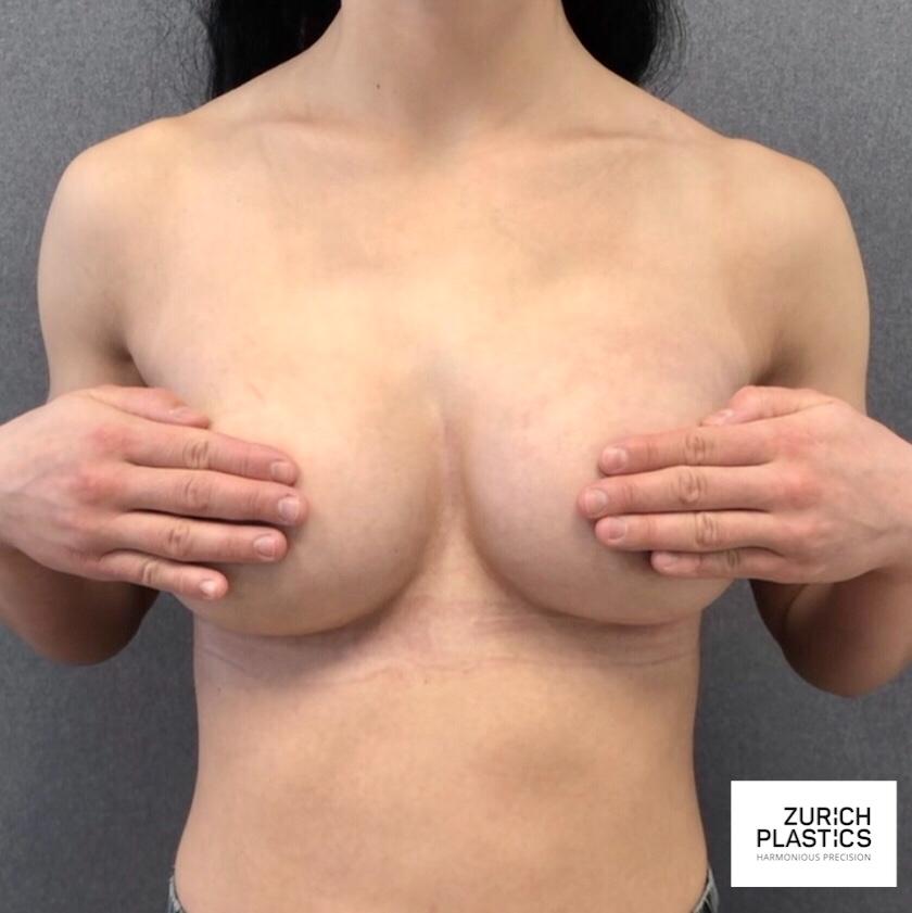 Brustvergrösserung Zürich