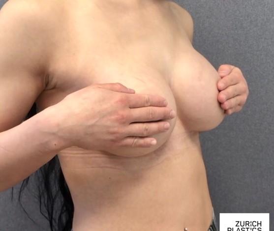 Individualisierte natürliche Brustvergrösserung