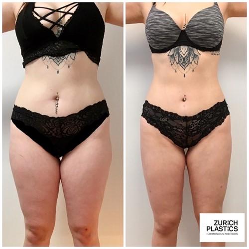 Liposuction | Fettabsaugung | Bodycontouring