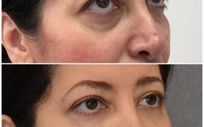 Nicht operative Gesichtskonturierung / Augenringenbehandlung