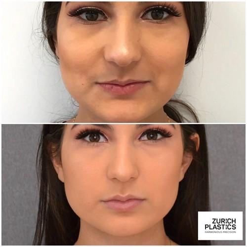 Lippenaugmentation