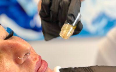 Aquagold fine touch Microneedling mit Botox und PRP Eigenblut