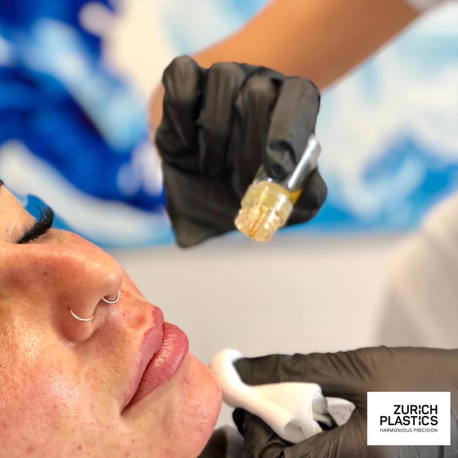 Microneedling mit Botox und PRP Eigenblut
