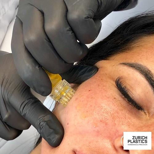 Microneedling mit Botox in Zürich