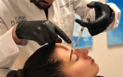 Liquid Rhinoplasty   Nicht operative Nasenkorrektur mit Hyaluronsäurefiller