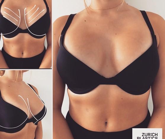 Natürliche Brustvergrösserung bei Zurich Plastics