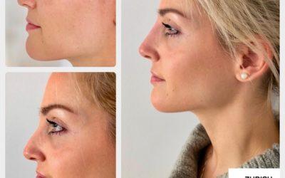 Nicht operative Nasenkorrektur mit Hyaluronsäure