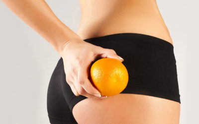 The relationship between cellulite, exercise & nutrition